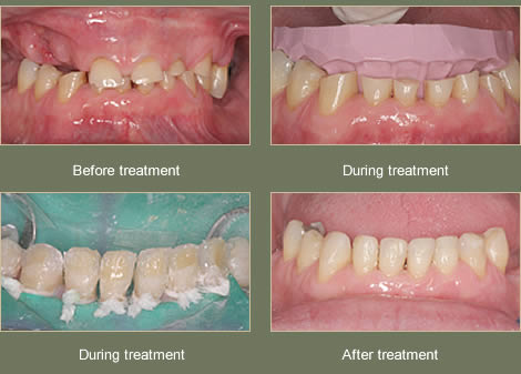 Composite Bonding To Restore Damaged Teeth In Central London