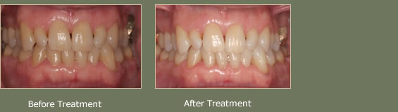 Teeth Whitening In Central London By Dr Pranay Sharma
